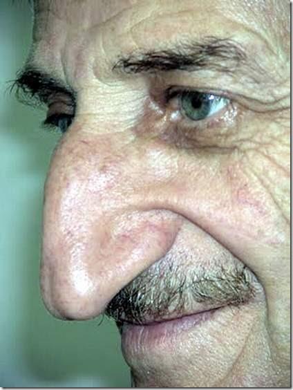 longest nose  Mehmet Ozyurek